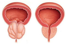 Urotrin applies to the prevention of prostatitis